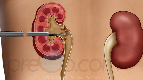 surgery for kidney stones