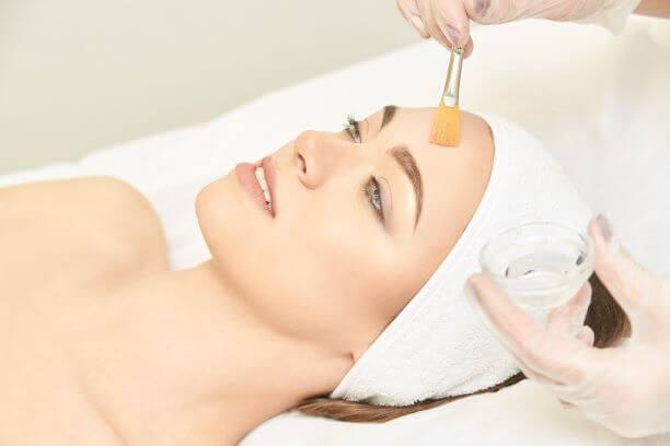 Acne Peel Treatments